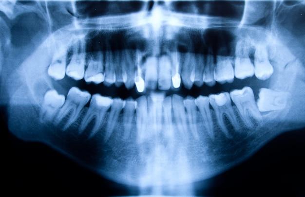 Pełne usta panoramiczne w zdjęciu rentgenowskim, pokazujące wszystkie zęby