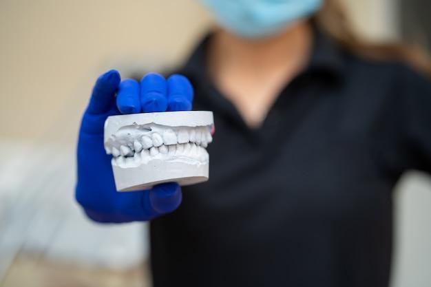 Piękna dziewczyna profesjonalny lekarz dentysta ortodonta pokazuje gipsowy odlew szczęki