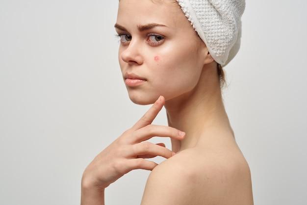 Piękna kobieta z ręcznikiem na mojej głowie dermatologia na białym tle
