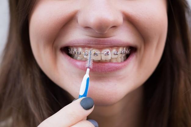 Piękna młoda dziewczyna z metalowymi szelkami na zęby z białymi zębami i szczoteczką
