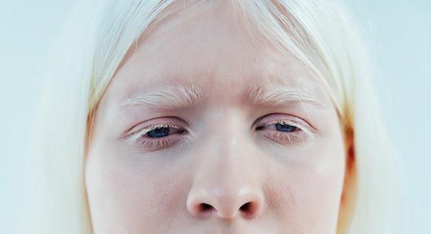 Piękny wizerunek dziewczyny albinos pozującej w studio w bieliźnie
