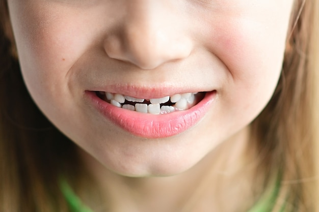 Pierwsze zęby trzonowe i krzywe zęby dziecka uśmiechnięty portret małej blondynki w zbliżeniu