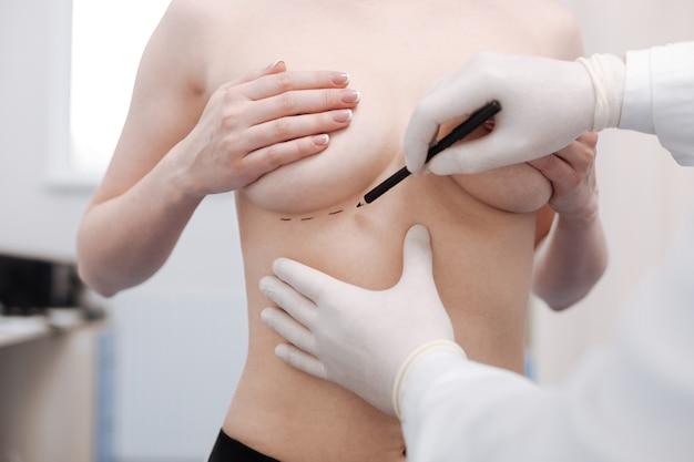 Pierwszy krok. ostrożnie precyzyjnie zapracowany chirurg plastyczny zaznacza linie do wykonania cięć przed rozpoczęciem zabiegu i wszczepieniem implantów