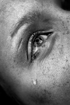 Płaczące oko