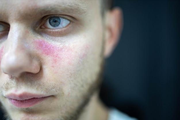 Plamy starcze zaczerwienienia na twarzy młody człowiek jest chory toczeń rumieniowaty układowy
