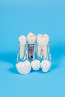 Plastikowe korony dentystyczne, imitacja protezy dentystycznej mostu dentystycznego na trzy zęby z metalowym implantem śrubowym na niebieskim tle.