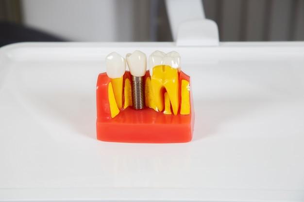 Plastikowe korony dentystyczne, imitacja protezy dentystycznej mostu dentystycznego na trzy zęby z metalowym implantem śrubowym