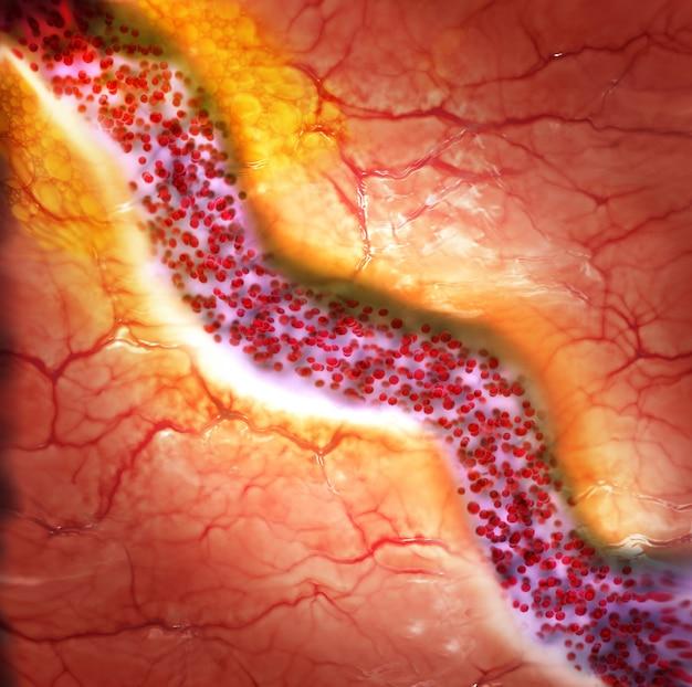 Płytka cholesterolowa w naczyniu krwionośnym