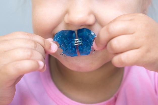 Płytka dentystyczna. rozbudowa szczęki u dziecka. talerz do nieba. za mało miejsca na trzonowce. szczęśliwa dziewczyna trzyma w dłoniach płytkę ortodontyczną
