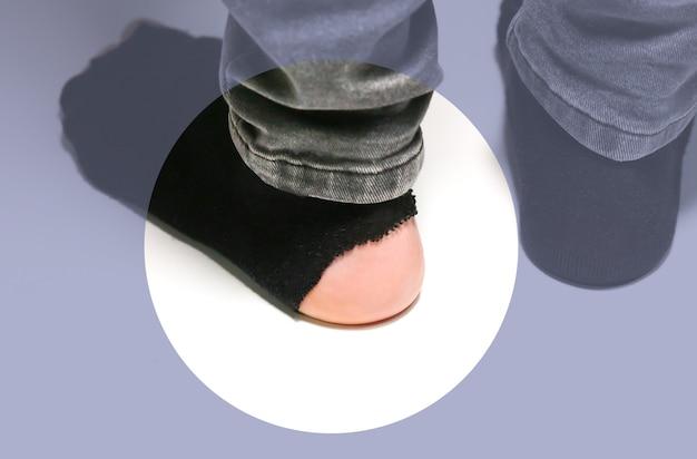 Podarte skarpetki na męskich stopach. odrapane ubrania. biedna osoba.