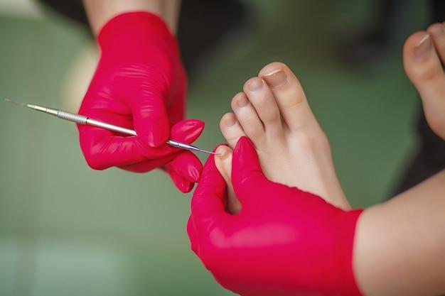 Podiatrist leczący paznokieć. leczenie podologiczne.