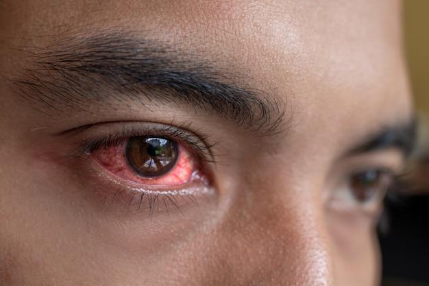 Podrażnione czerwone oczy potrzebują sterylnych kropli do oczu