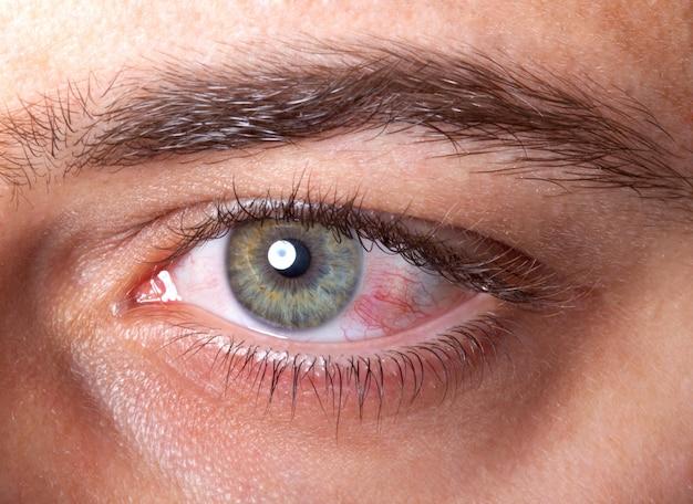 Podrażnione czerwone przekrwienie oka