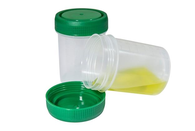 Pojemniki medyczne na płyny biologiczne