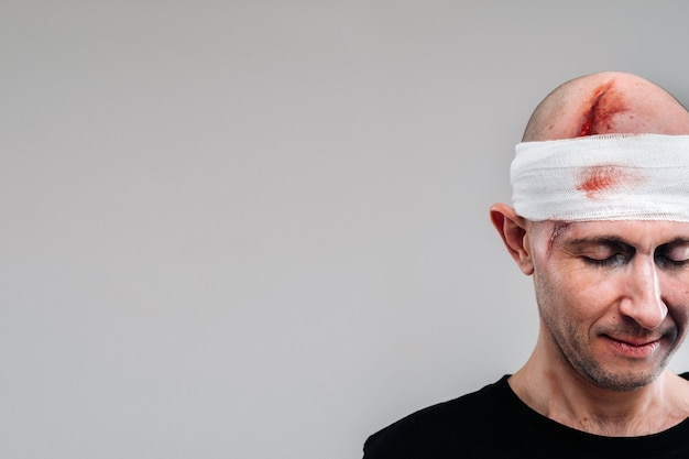 Poobijany mężczyzna w czarnej koszulce z głową owiniętą bandażem