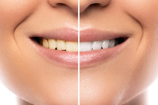 Porównanie po wybielaniu zębów