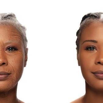 Porównanie. portret pięknej afrykańskiej kobiety z problemem i czystą skórą, starzeniem się i koncepcją młodości, zabiegi kosmetyczne i lifting. przed i po. młodość, starość. proces starzenia i odmładzania