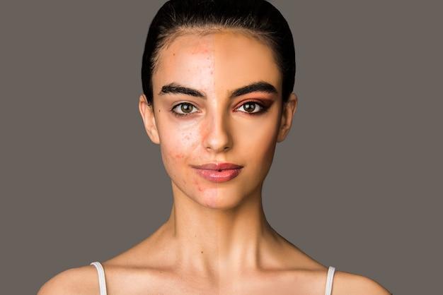 Portret kobiety z cerą problematyczną z trądzikiem i połową twarzy z makijażem