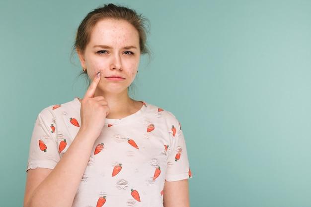 Portret nastolatka dotyka jej twarzy i szuka trądziku na niebiesko