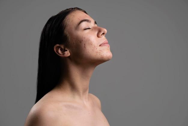 Portret pewna młoda kobieta z trądzikiem