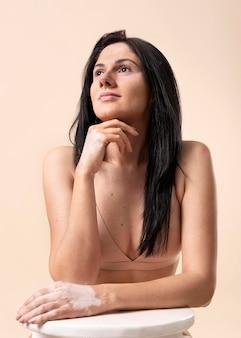 Portret pięknej kobiety z bielactwem