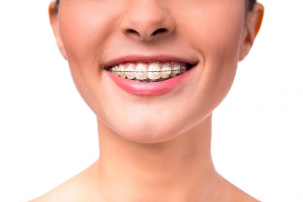 Portret pięknej kobiety z szelkami na zębach.