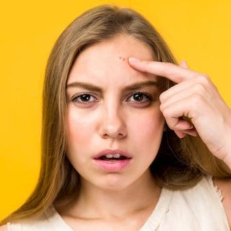 Portret smutna dziewczyna nastolatka dotyka jej twarzy i szuka trądziku