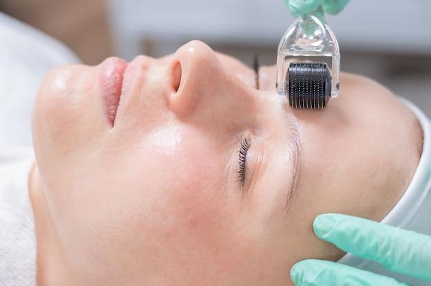 Portret twarzy kobiety ze skórą problematyczną. procedura peelingu. naturalne piękno. różne środki przekazu