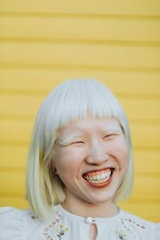 Portret uroczej dziewczyny albinos