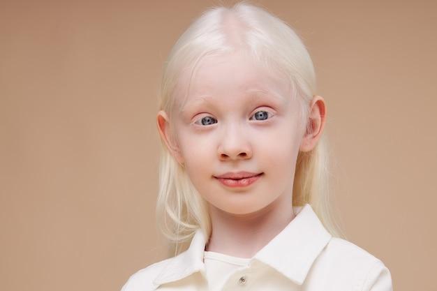 Portret uśmiechnięta dziewczynka albinos na białym tle