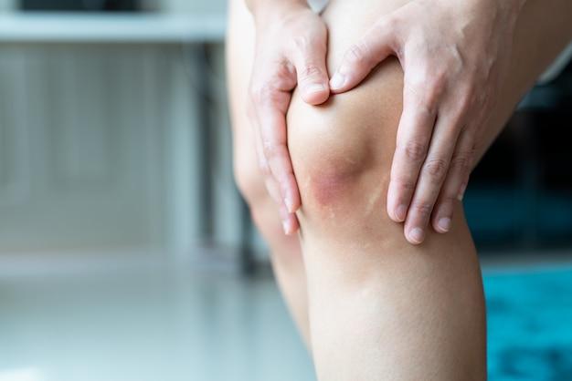 Posiniaczone kolano azjatyckiej kobiety, selektywna ostrość