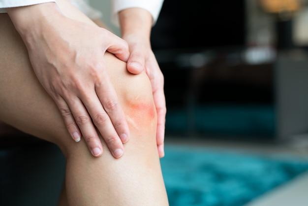 Posiniaczone kolano kobiety azji, selektywne focus