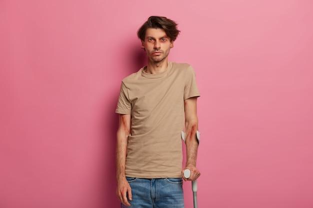 Poważnie wyglądający posiniaczony mężczyzna trzyma kule, jest niezdolny do chodzenia, dochodzi do siebie po długim leczeniu i poważnym wypadku samochodowym, ma złamaną lub zwichniętą nogę. konsekwencje niebezpiecznej jazdy