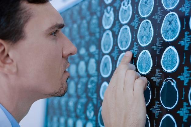 Poważny, przystojny, profesjonalny lekarz patrząc na zdjęcie rentgenowskie i myślący o diagnozie mając ciekawy przypadek