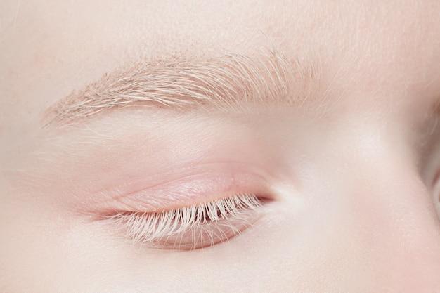 Powieki. bliska portret pięknej modelki albinos. części twarzy i ciała. uroda, moda, pielęgnacja skóry, kosmetyki, koncepcja odnowy biologicznej