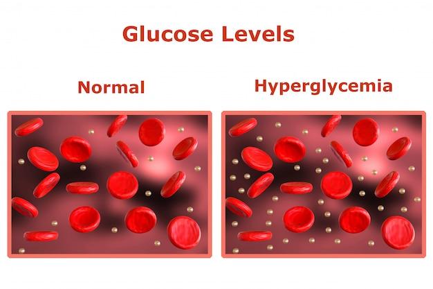 Poziom glukozy we krwi, tabela z normalnymi poziomami i inna tabela wskazująca na cukrzycę. renderowanie 3d