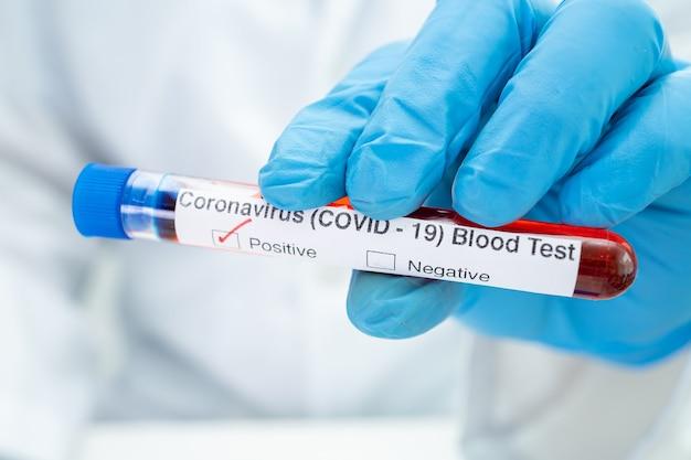 Pozytywna próbka zakażenia krwi w probówce na koronawirusa covid19 w laboratorium