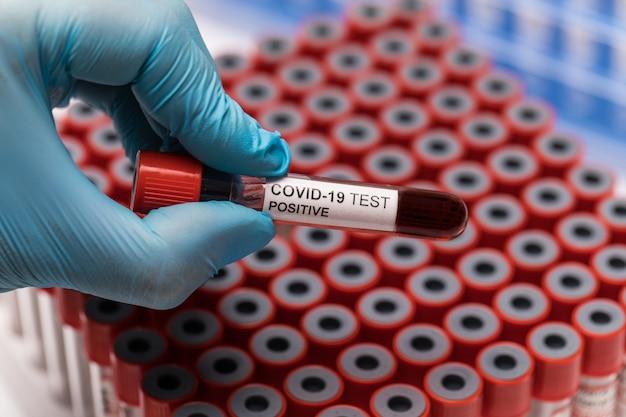 Pozytywna probówka testowa covid-19 i laboratoryjna próbka krwi do diagnozowania nowej infekcji wirusem corona nowa choroba wirusa koronowego z kosmosu. pandemiczna koncepcja zakaźna