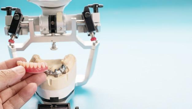 Prace nad implantami dentystycznymi są zakończone i gotowe do użycia / tymczasowe zaczepienie implantu dentystycznego