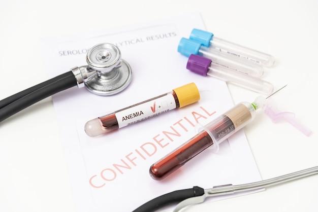 Próbka krwi do badania grup krwi niedokrwistość.