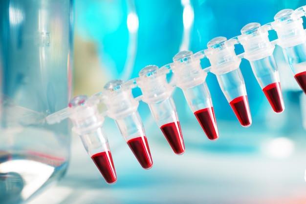 Próbki dna w jednorazowych plastikowych probówkach do analizy pcr