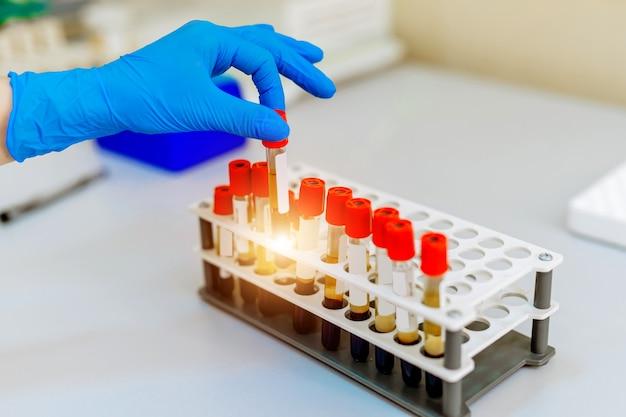 Próbki krwi do badań w mikroprobówkach. diagnozowanie zapalenia płuc. covid-19 i identyfikacja koronawirusa. pandemia. wirówka z sitem.