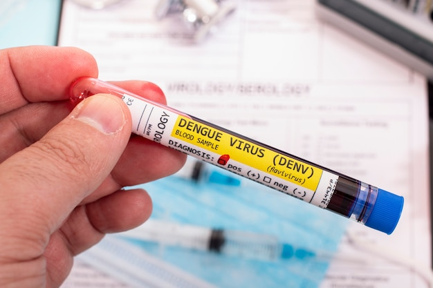 Próbki krwi z zainfekowanym wirusem