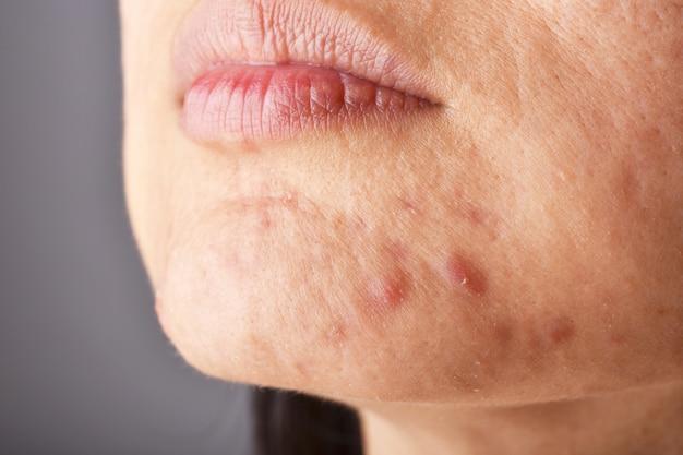 Problem skórny z chorobami trądzikowymi, bliska twarz kobiety z pryszczami na brodzie, wybuchy miesiączkowe, blizna i tłusta tłusta twarz.