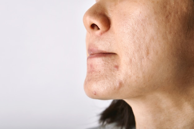 Problem skóry z trądzikiem, blizny i tłustej tłustej twarzy