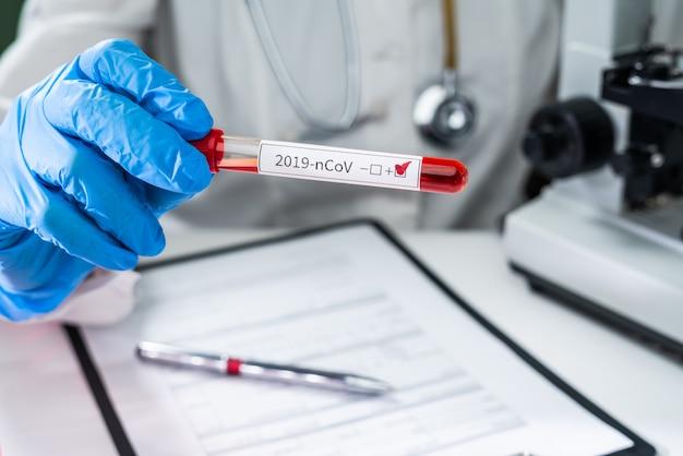 Probówka z krwią w ręce lekarza, test koronawirusa mers-cov pozytywna etykieta w szpitalnej probówce do analizy. infekcja wirusowa 2019-ncov pochodząca z wuhan w chinach