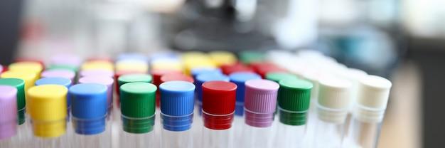Probówki z kolorowymi zakrętkami są w laboratorium