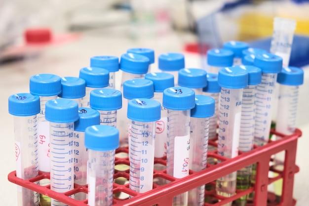 Probówki z próbkami w stojaku. naukowe laboratorium chemiczne.