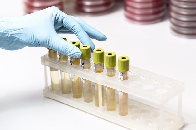 Probówki z żółtą cieczą w laboratorium