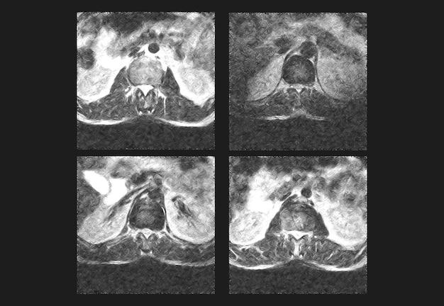 Profesjonalne obrazy rtg kręgosłupa grzbietowego i tomografia komputerowa